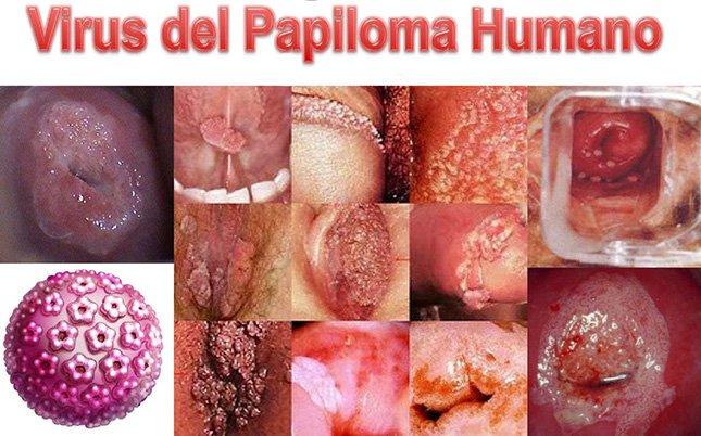 virus del papiloma y preservativo