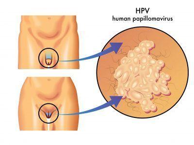 obat human papillomavirus comment voir le papillomavirus chez lhomme