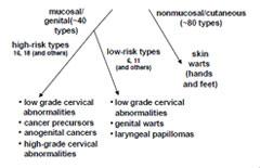 papillary urothelial carcinoma score inverted papilloma nasal