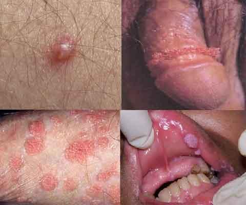 cancer hpv homem sintomas