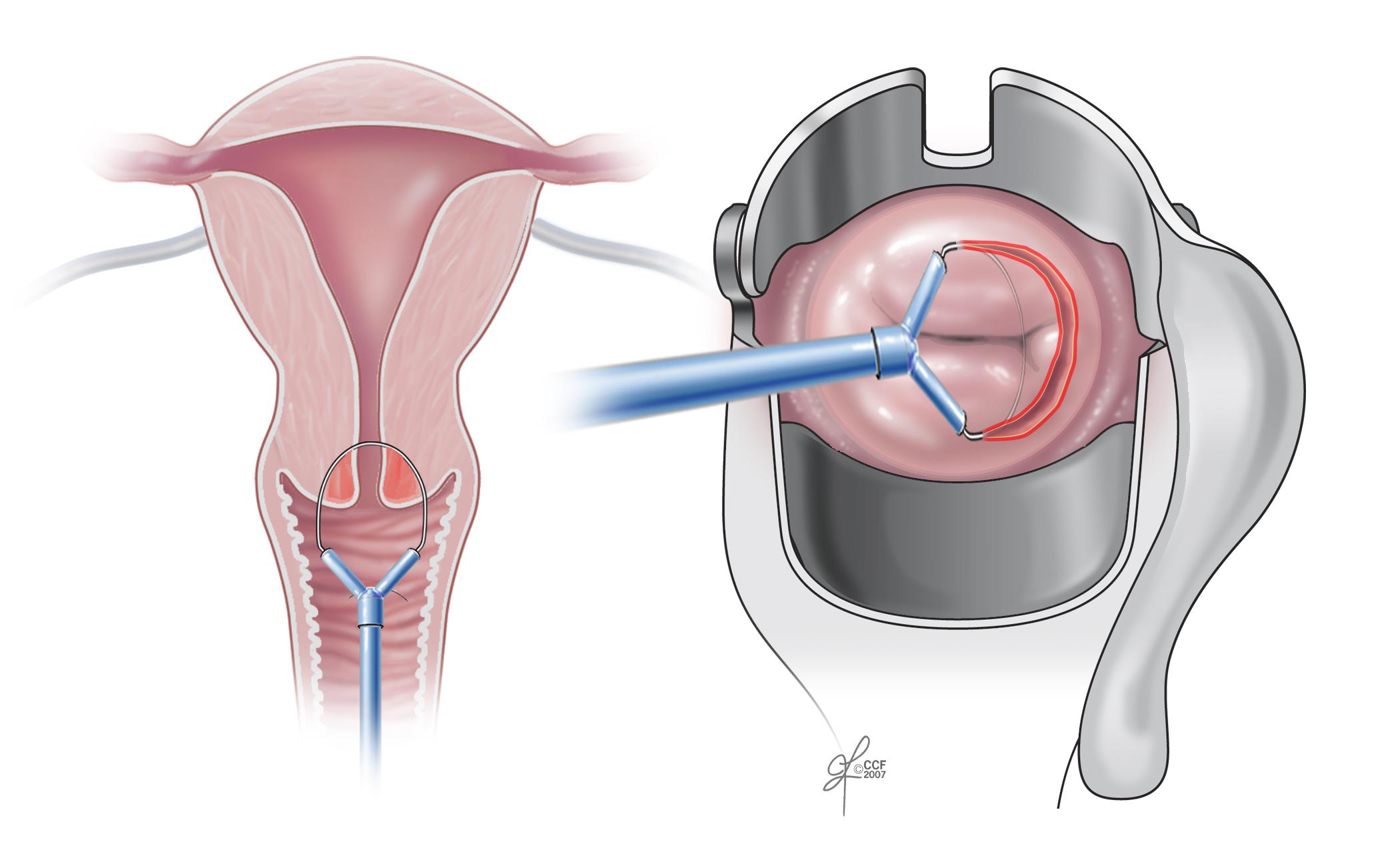 hpv and peritoneal cancer warts treatment at clicks