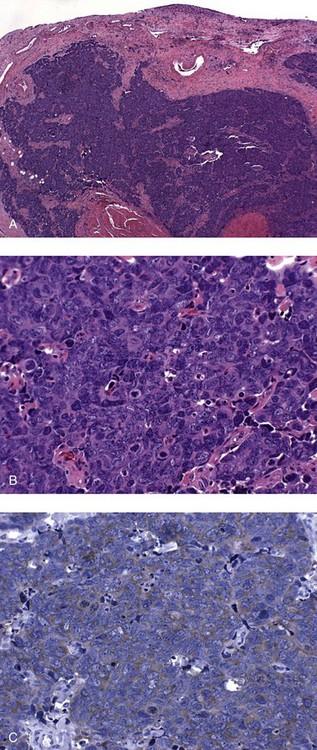 papillomavirus cervix cancer