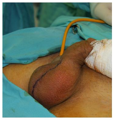 cancer testicular operacion