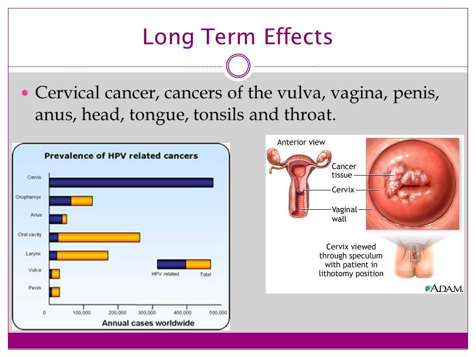 genital hpv long term effects cancer de prostata ultimas noticias