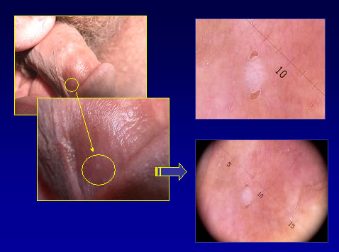 papilloma virus genitali uomo intraductal papilloma excision procedure