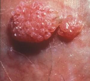 hpv tedavisi erkekler virus del papiloma y herpes