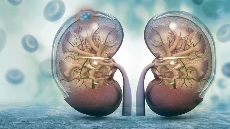 catena detoxifiere colonului viermi umezeala