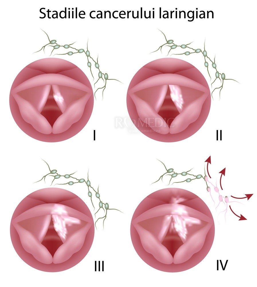 squamous cell papilloma slideshare simptome cancer glande salivare
