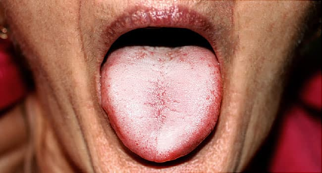 hiv and eye cancer warts on the skin