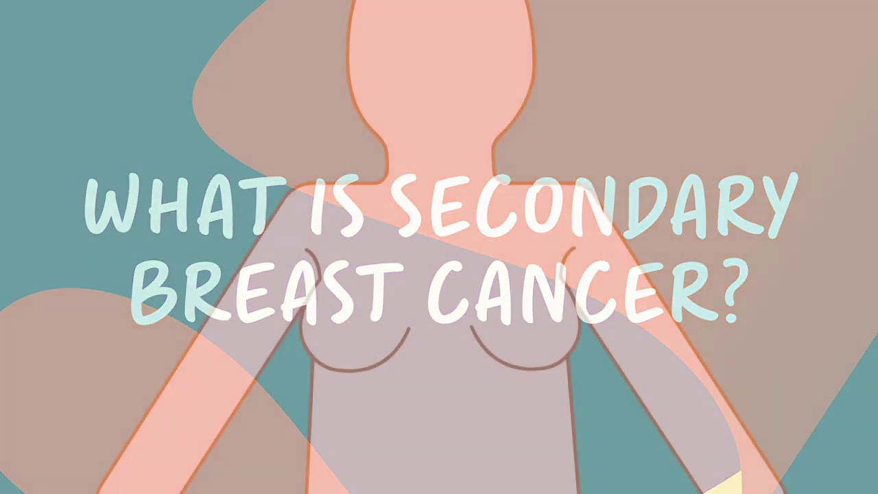 metastatic cancer hip pain cervical cancer znaczenie