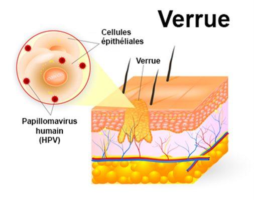 detoxifiere galina tomas giardia în materiile fecale umane