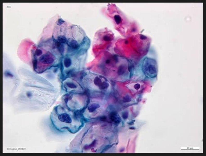 il pap test individua il papilloma virus