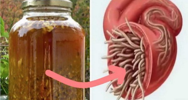 papilloma back of throat