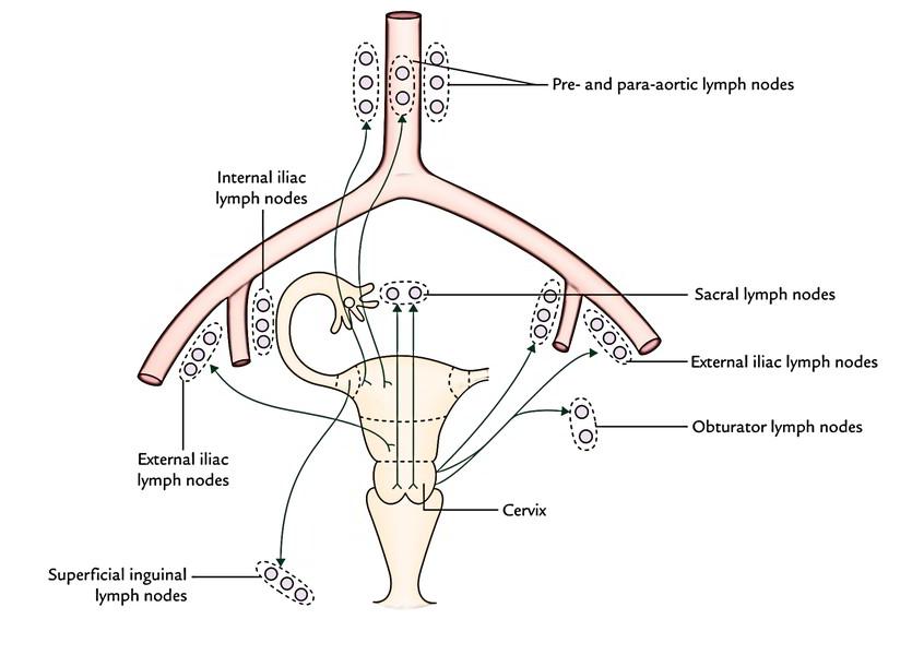 hpv contagio entre mujeres lesioni da papilloma virus nelluomo