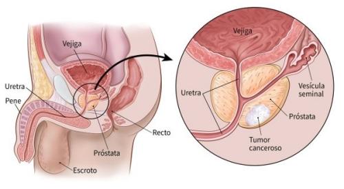 cancer en la prostata y sus sintomas