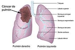 cancer pulmonar g2