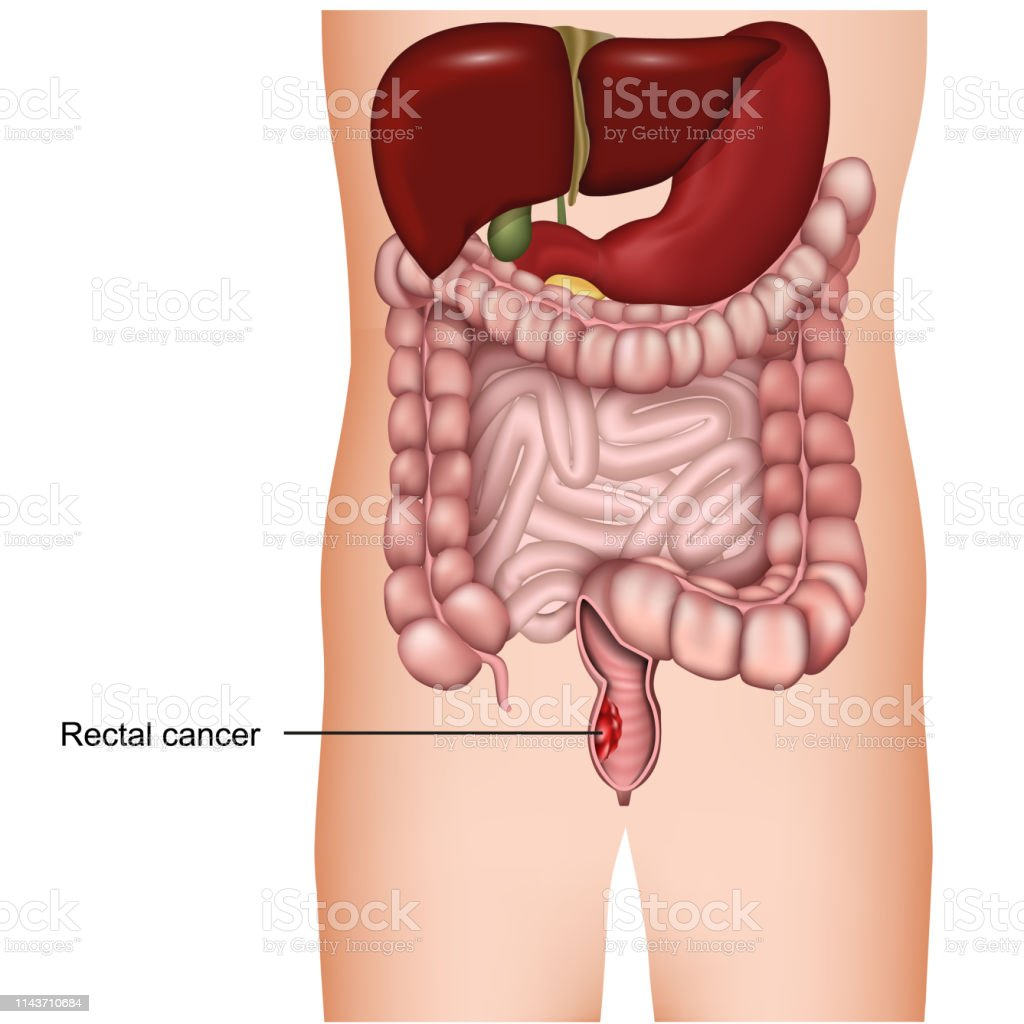 Cancerul rectal
