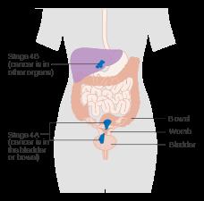 uterine cancer metastasis cancerul de tiroida doare