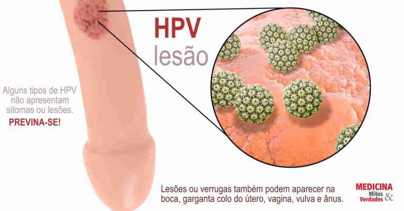 papiloma humano como se contagia uterine cancer before menopause
