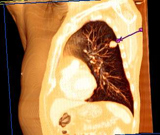 cancer renal metastasis mas frecuentes