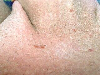 hpv manner krebs virus papiloma humano garganta sintomas