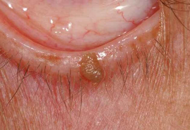 what is a papilloma warts on hands caused by