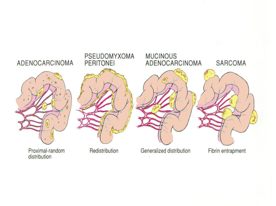 cancer gastrico peritoneal