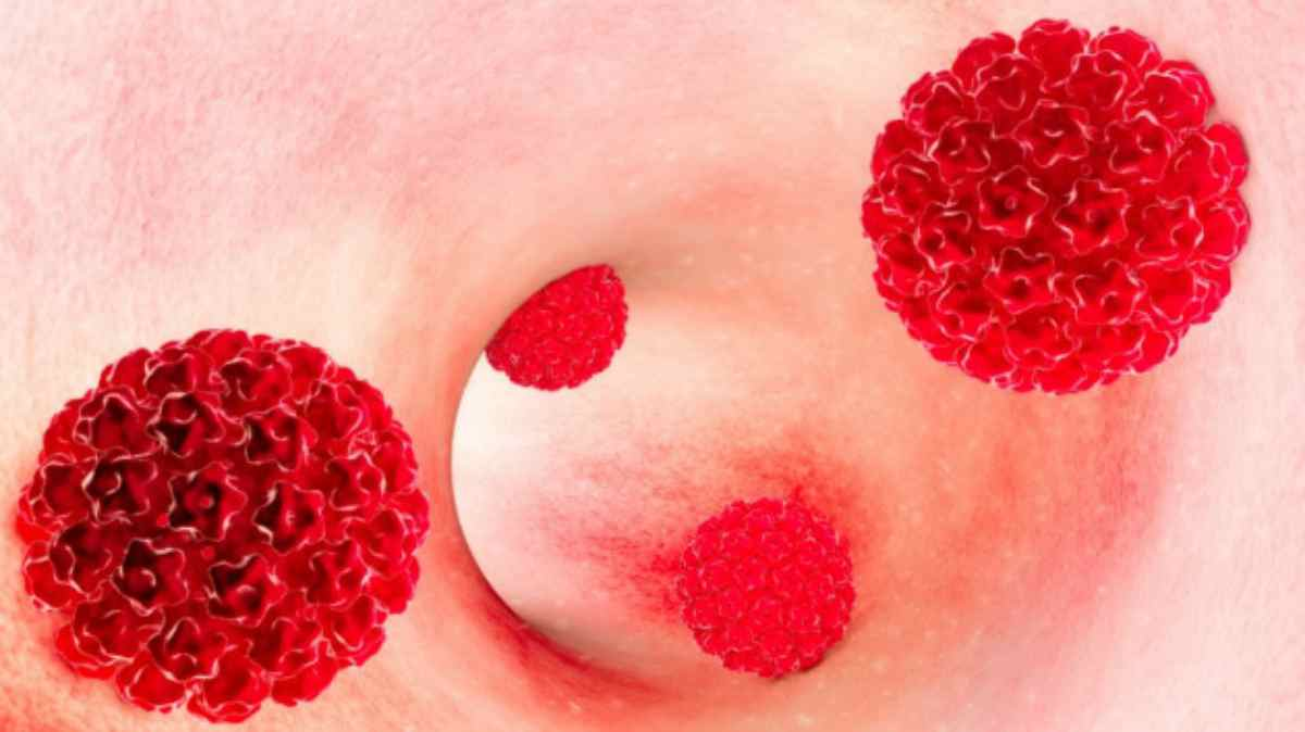 helminth therapy and type 1 diabetes virus del hpv en mujeres
