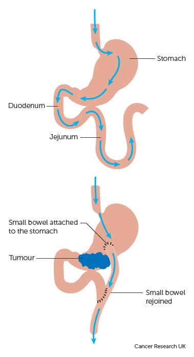 abdominal cancer surgery soigner papillomavirus huiles essentielles