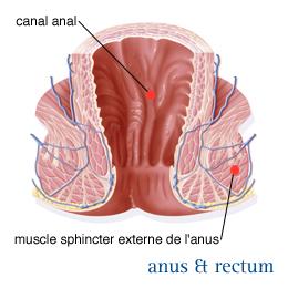 papiloma humano tratamiento mujeres