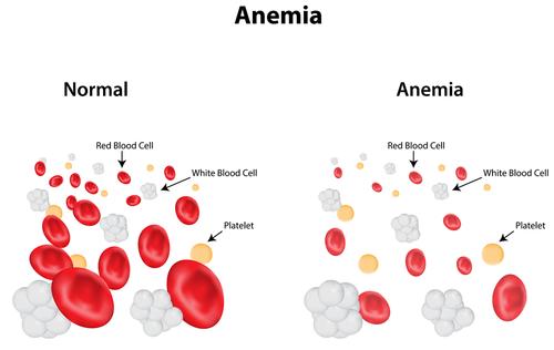 anemie hipocroma microcitara