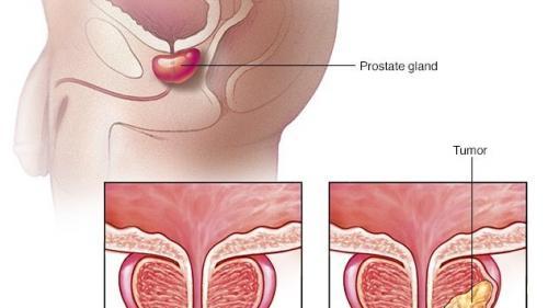 se trateaza cancerul de prostata hpv impfung rezept