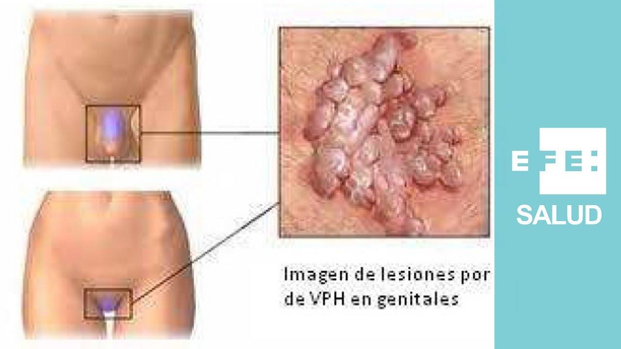 papillomavirus avec lesion