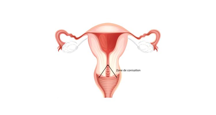 papillomavirus conisation et grossesse