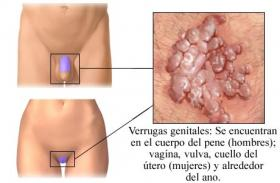 diferencia entre herpes y papiloma humano gastric cancer and anemia