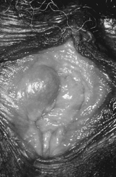 vestibular papillomatosis white