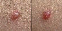 papilloma virus sintomas papilloma tongue nhs