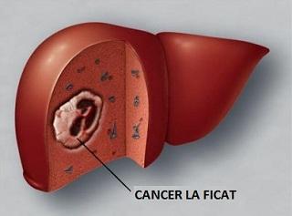 cancerul de ficat se vindeca papilomatosis dermatologia