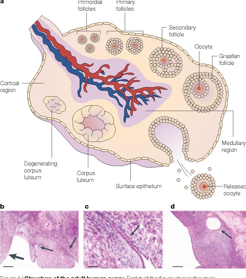 cancer ovarian metastaze cancer colon que manger