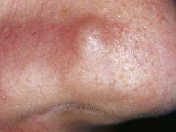 hpv warts on face pictures papillomavirus gland homme