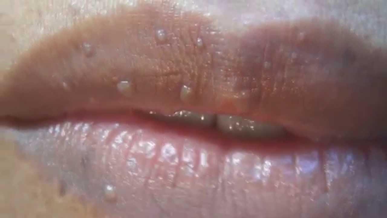papanicolaou normal colposcopia anormal