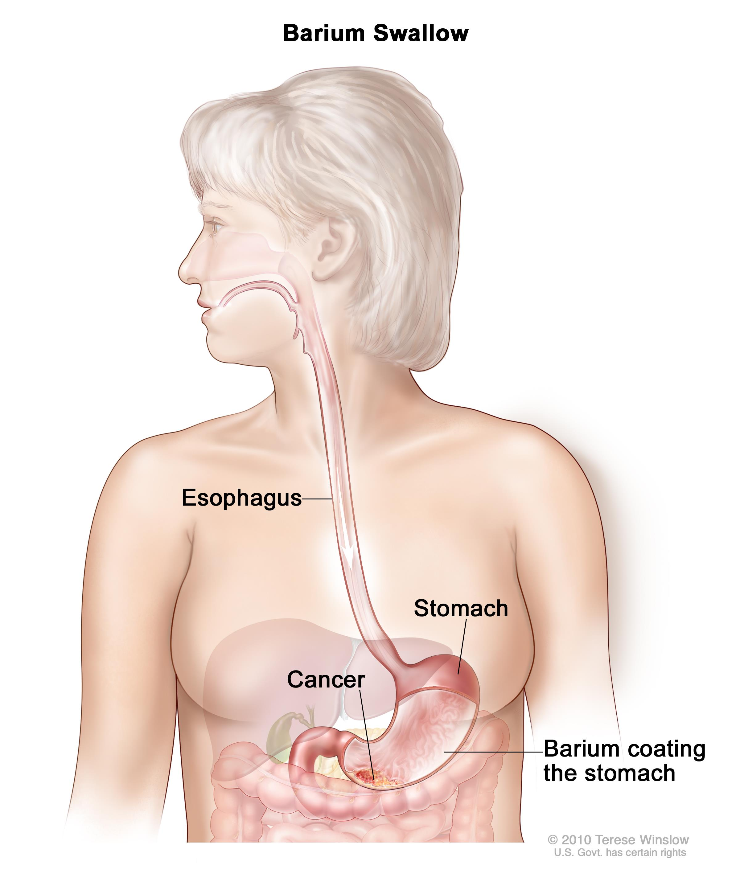ovarian cancer keytruda benign cancer synonym