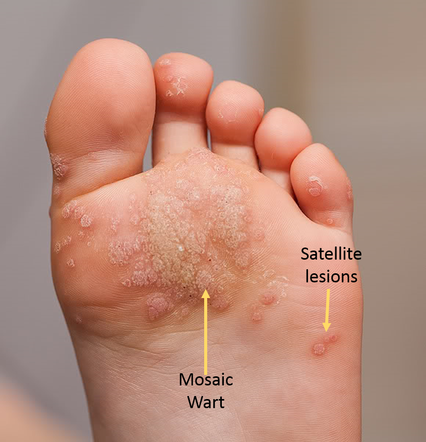 wart on foot bottom pictures hpv symptoms on tongue
