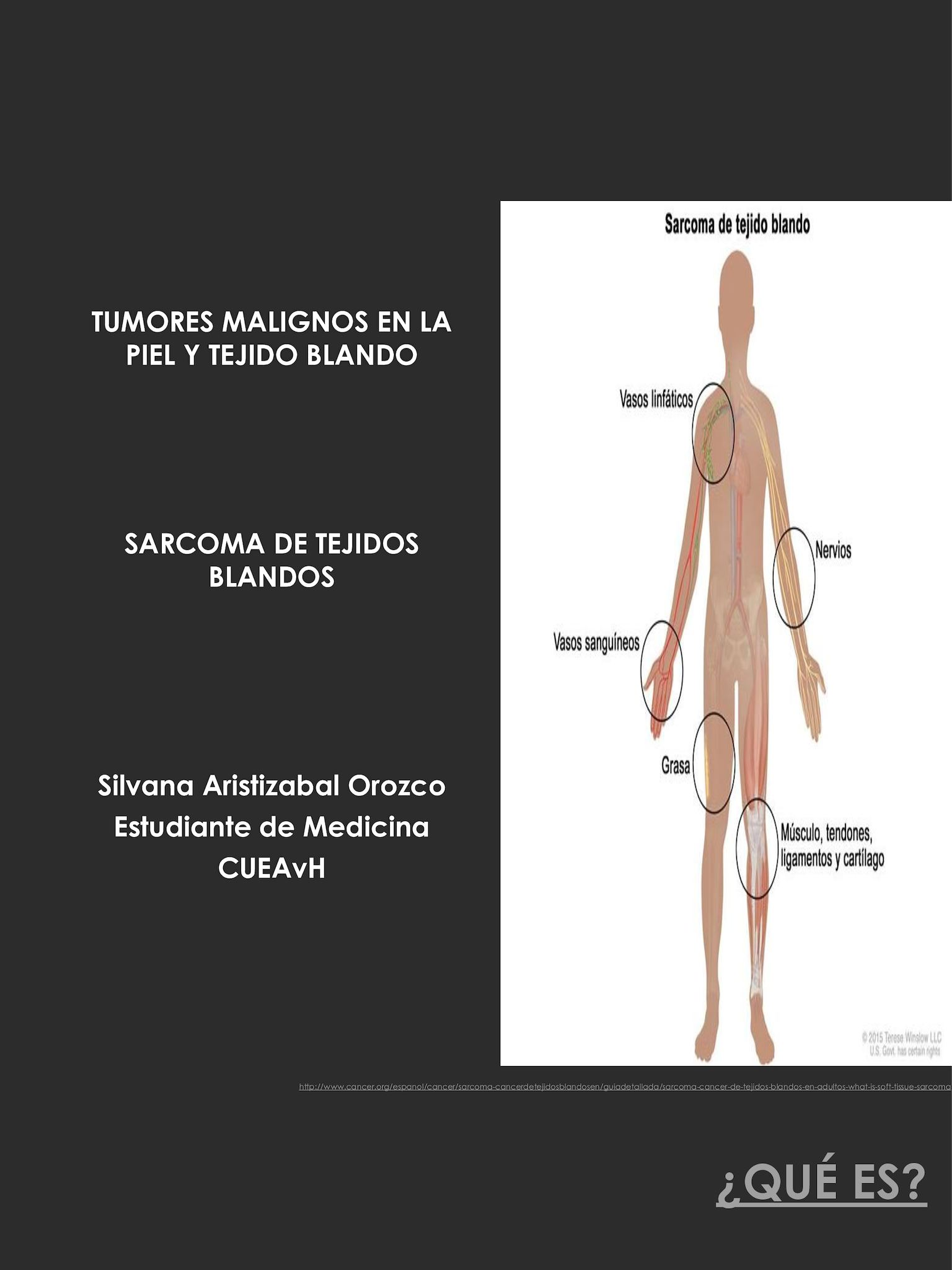 cancer sarcoma tejido blando cancer pulmonar metastaze osoase