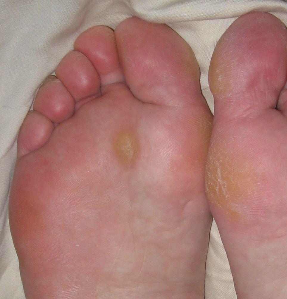 wart diabetic foot