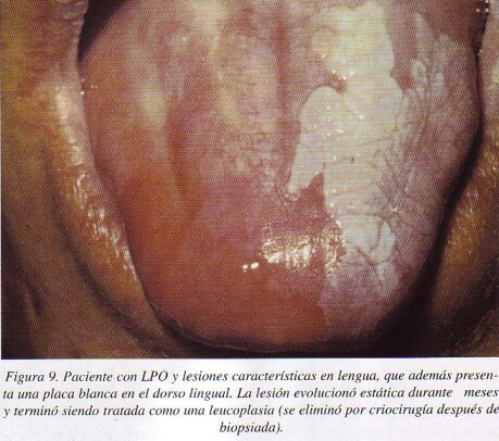 que es papiloma plano tipico hpv throat cancer recurrence survival rate