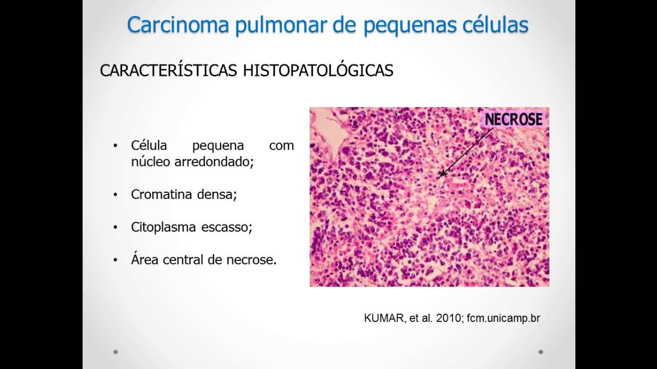 hpv throat cancer curable papiloma intraductal en senos
