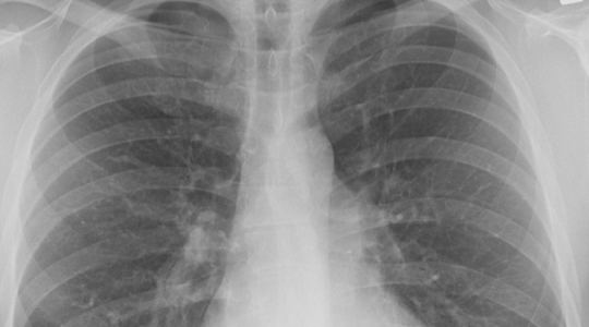 cancer pulmonar romania