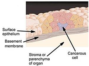 papiloma escamoso genital tratamiento cancer cervical que causa