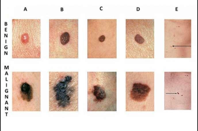 benign cancer mole